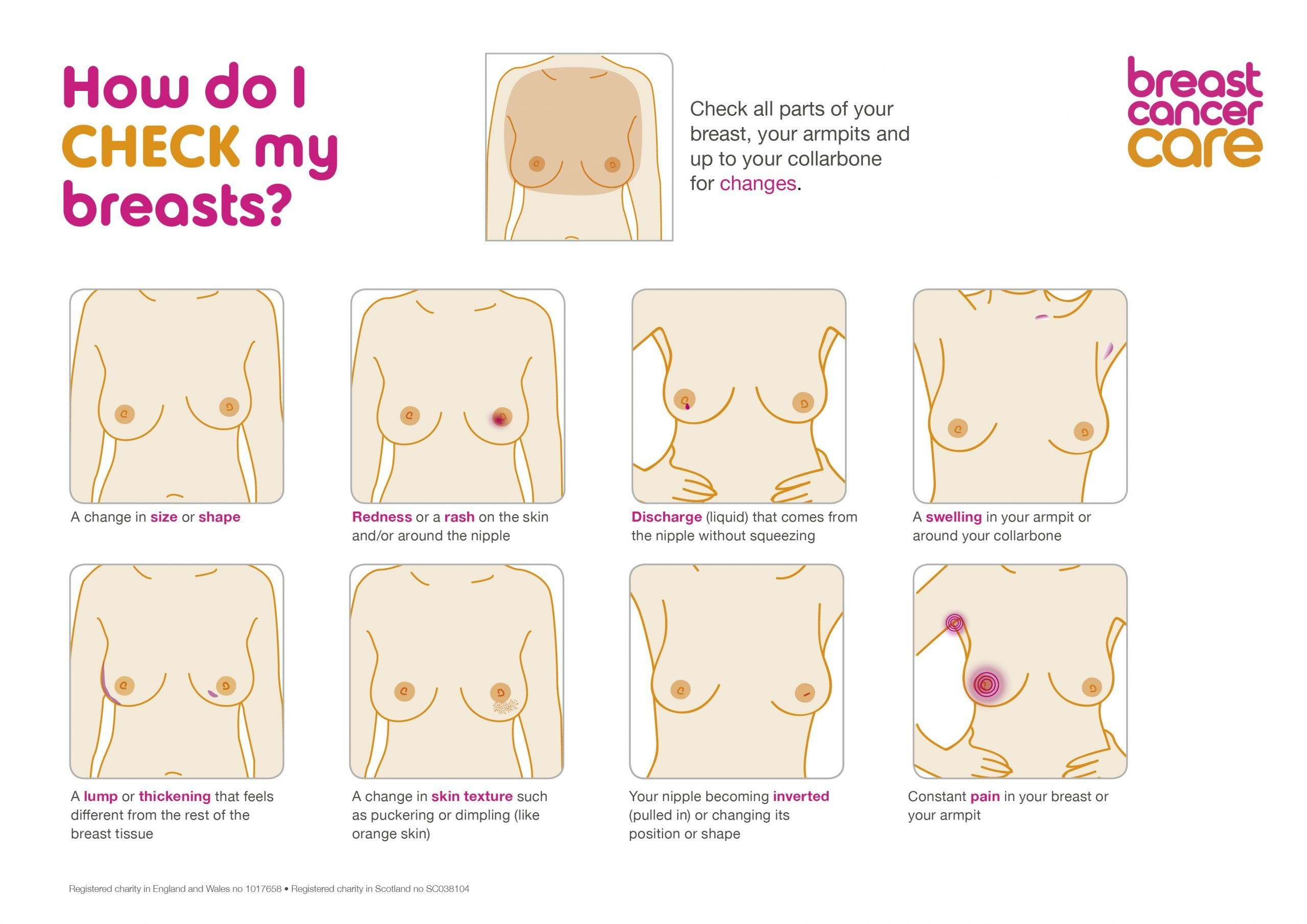 Let's Talk: Breast Cancer